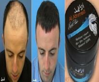 كريم الاثمد لعلاج جميع مشاكل الشعر والصلع المبكر