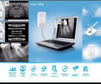 Sensor xray- جهاز سينسور أشعة اسنان