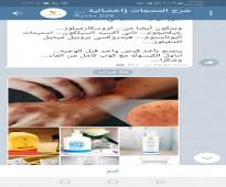 منتجات طبيعية للاكزيما والصدفية