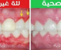افضل معجون اسنان في العالم