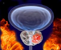العلاج المناعى للسرطان أفضل علاج أمن فى العالم