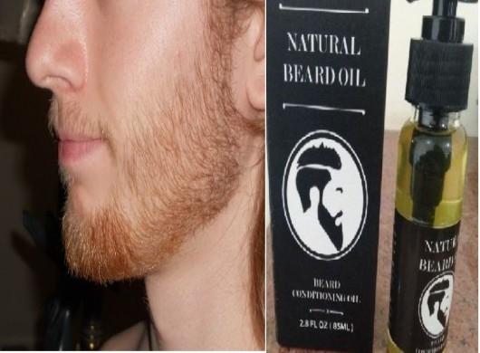 رقمي تدحرج الأرق علاج لانبات الشعر في الذقن 14thbrooklyn Org